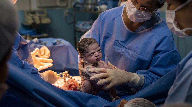 «Сердитый» новорожденный стал любимцем Сети